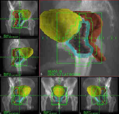 ... -Dimensional Conformal Radiation Therapy (3DCRT) for Prostate Cancer