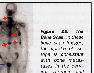 Bone scan images