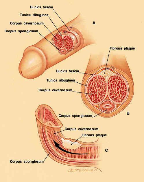 Peyronies Disease Anatomical Cause